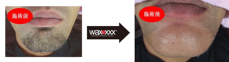 xxxba8